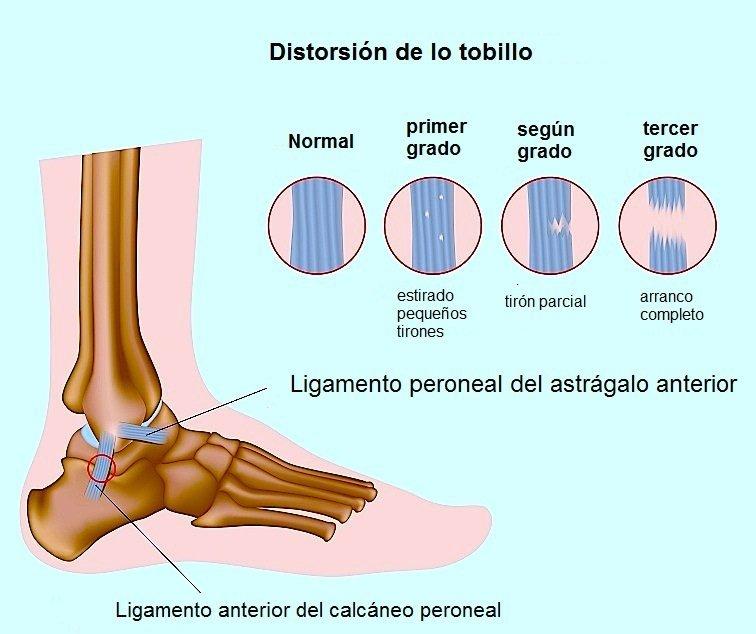 lesión, tendón, Aquiles, dolor, cirugía, quirúrgico
