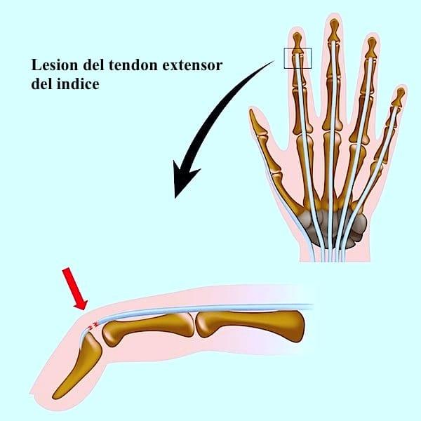 Lesión, rotura, desgarro, tendón ,extensor, dedos, mano, hinchazón, dolor
