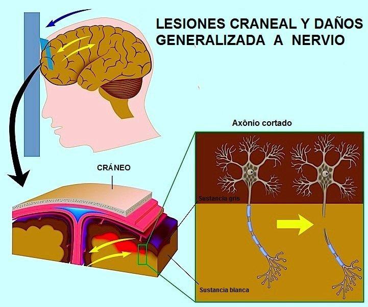 trauma, craneal, hematoma, subdurale, duro, fractura, cráneo, assone, da, assonale, nervio, cerebro
