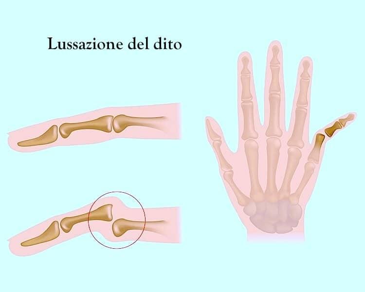 luxación, dedo, dolor, hinchazón, hinchado, mano, tratamiento, terapia