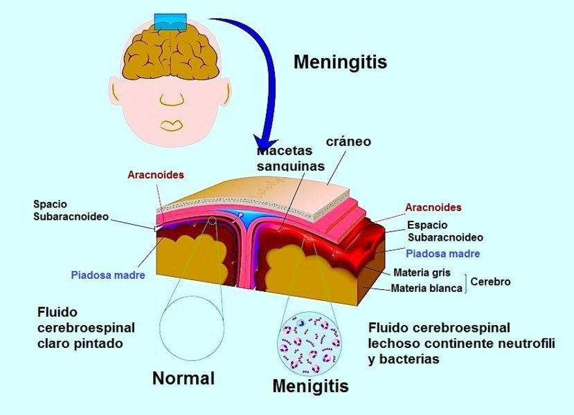 Meningitis, dolor, rigidez en el cuello, confusión severa, las bacterias, las infecciones, la inflamación
