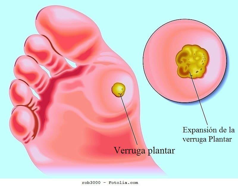 Verruga plantar, genital y vulgar, síntomas, contagio, tratamiento y ...