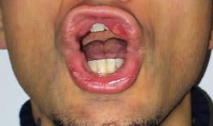 llagas/ aftas en la boca, afta, llaga, lengua, labios