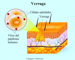 verruga, células epiteliales, papioma virus