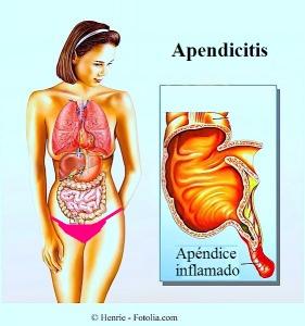 Apendicitis - síntomas, remedios y operación quirúrgica