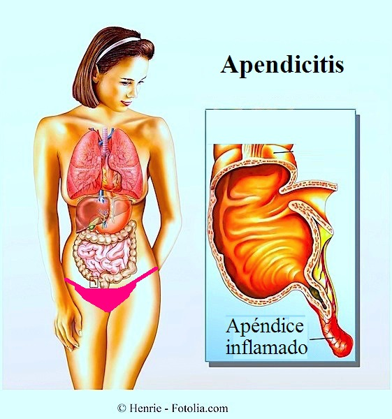 Apendicitis, aguda, en niños, sintomas, lado, dolor, operacion