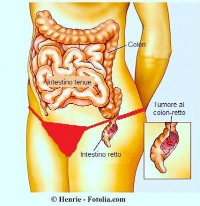 tumor-en-el-recto