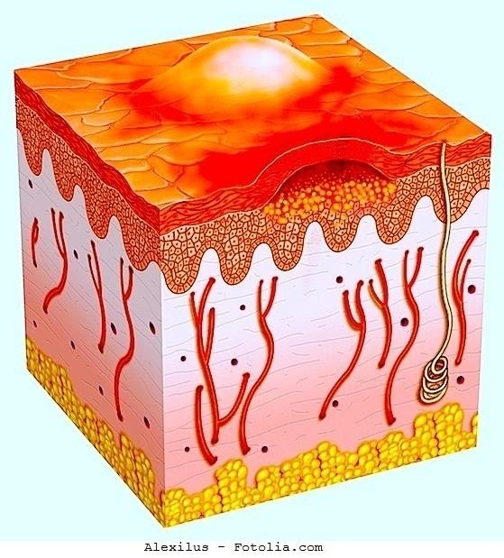 pústulas, forúnculos, foliculitis