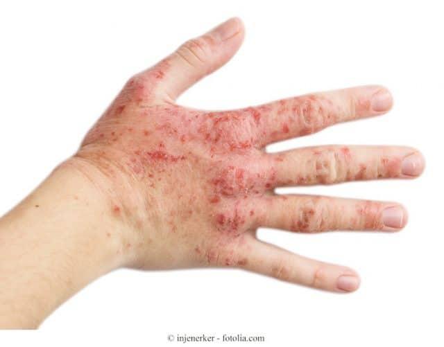 Dermatitis de contacto irritativa o al rgica manos en for Bouton interieur levre bouche