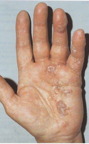 La eccema el tratamiento tsitroseptom