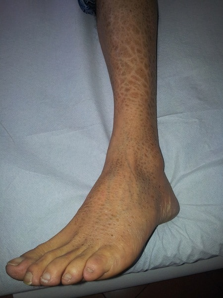 eccema, pierna, tobillo, dermatitis