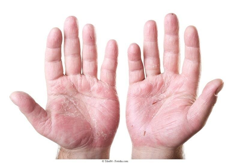 manos, dermatitis, contacto.