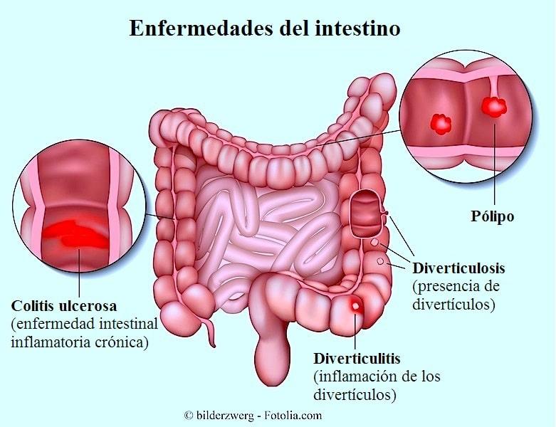 Dolor de colon, síntomas, espalda, izquierdo, derecho y remedios caseros