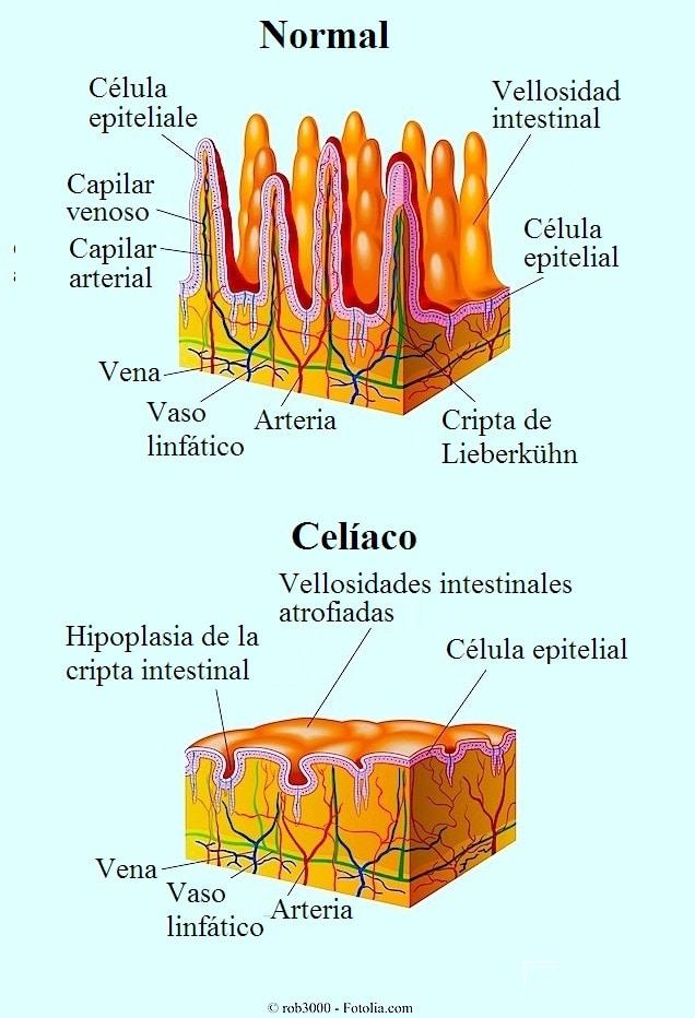 Enfermedad celiaca, causas, sintomas y test