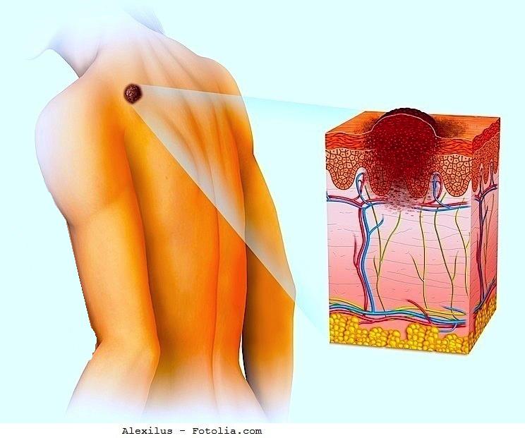 Melanoma de la piel
