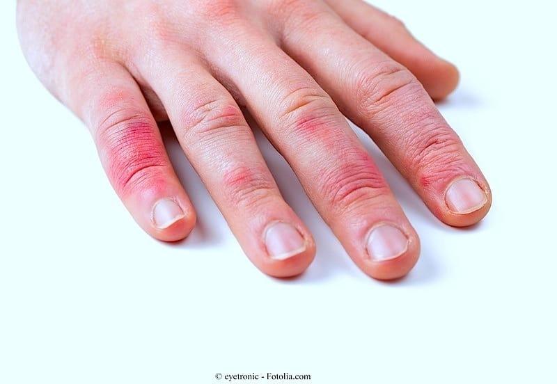 Picor en la piel