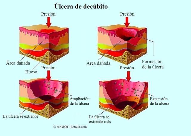 Úlceras de decúbito
