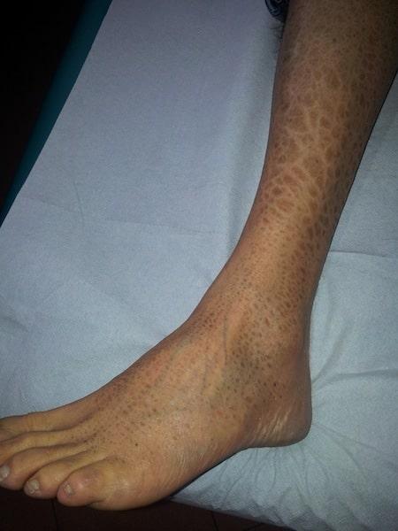piel reseca y escamosa, eczema