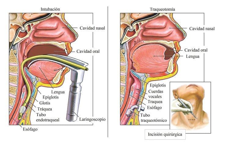 traqueotomía, intervención quirúrgica, traqueítis, intubación