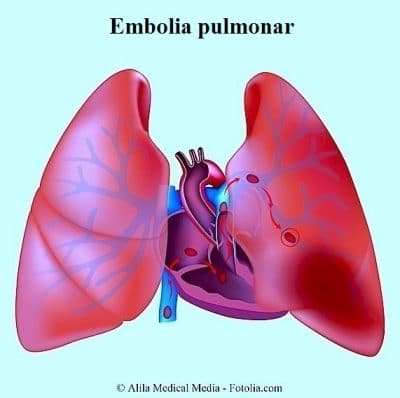embolia pulmonar, pulmones, bronquios