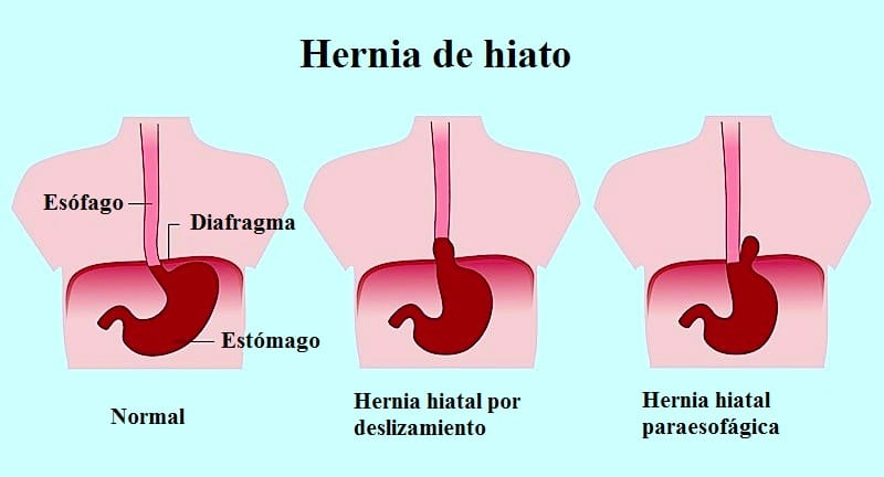 Hernia de hiato o hiatal por deslizamento que es s ntomas y tratamiento - Alimentos prohibidos para la hernia de hiato ...