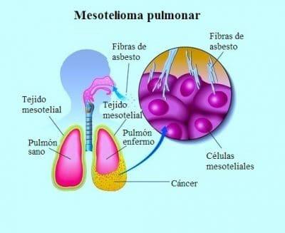 Mesotelioma pleural