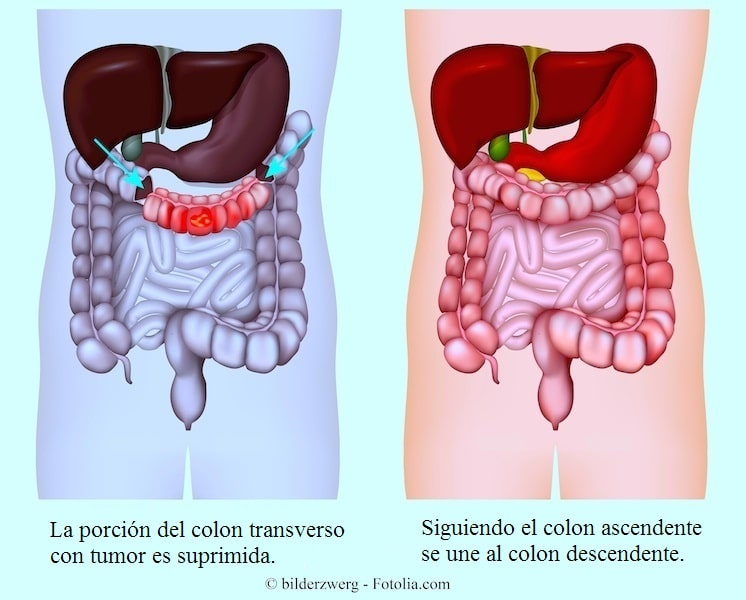 Intestino, colon, tumor, cáncer
