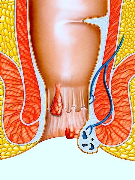Tratamiento para las hemorroides y remedios