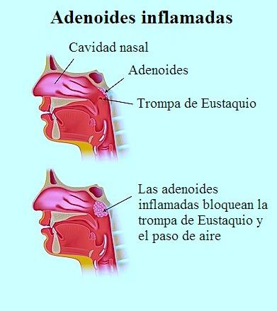 adenoides, foto, imagen