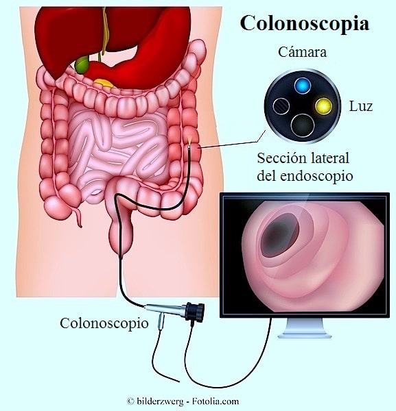 Colonoscopia, colonoscopio, diagnostico, tumor, colon