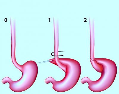 Cirugía para la hernia de hiato, funduplicatura
