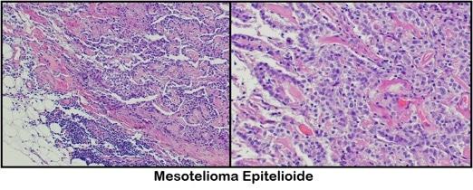 mesotelioma epitelioide