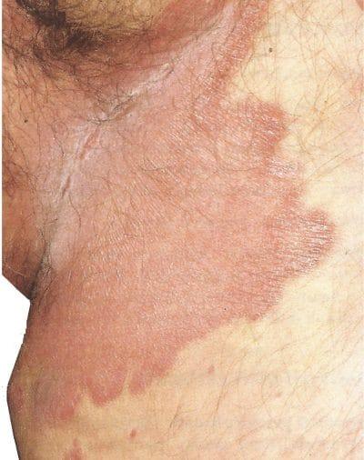 Psoriasis genital,inguinal