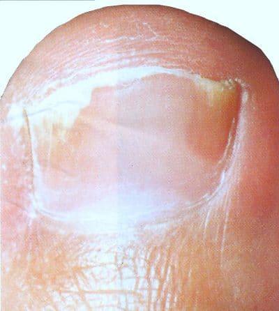 Psoriasis en las uñas