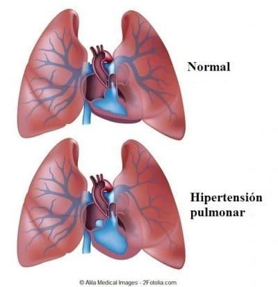 hipertensión, pulmón, pulmonar