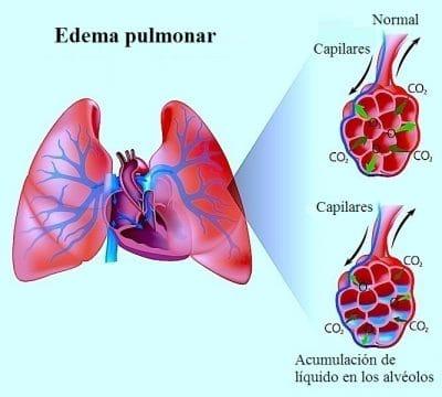 edema pulmonar, líquido, inflamación