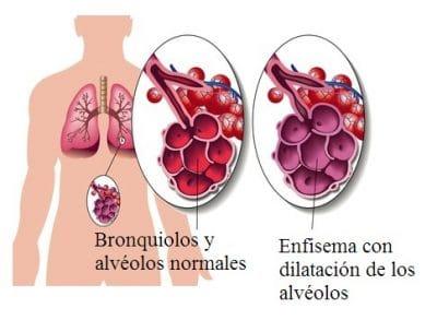 enfisema, pulmonar, tabaquismo, alveolos