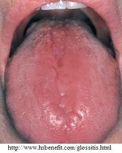 Glositis en la lengua