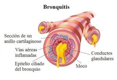 bronquitis, epitelio ciliado, moco
