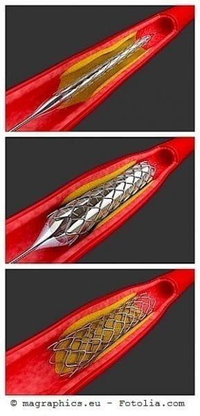 angiografía coronaria, examen