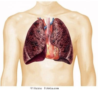 traqueítis, pulmones, tos
