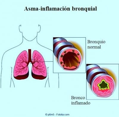 tos, broncos, bronquitis.