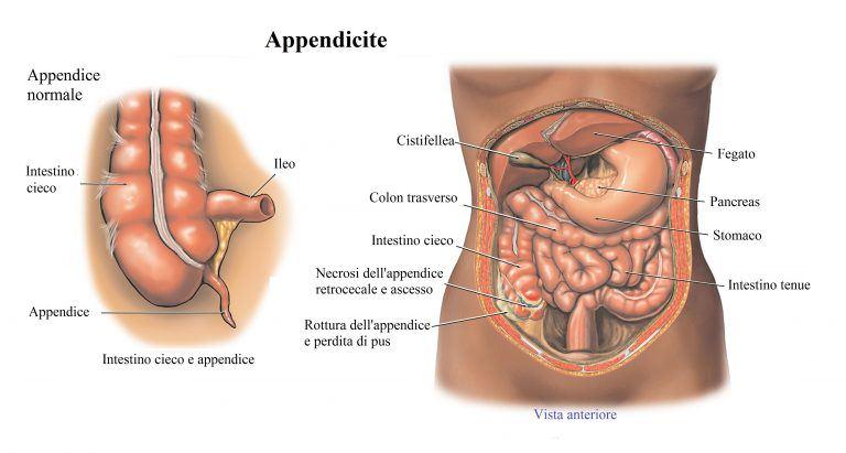 dolor en el vientre lado izquierdo