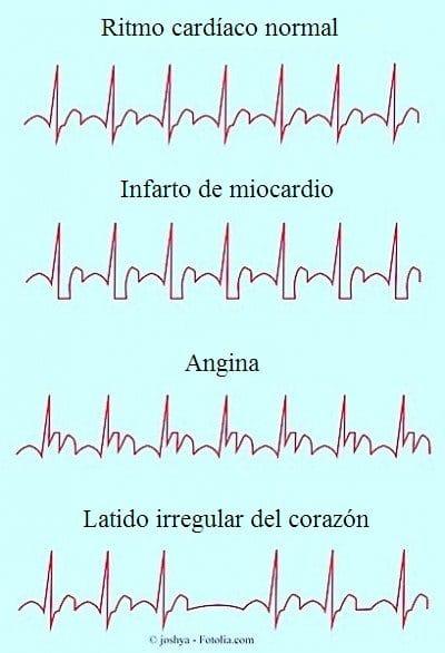Arritmia, cardíaca, corazón