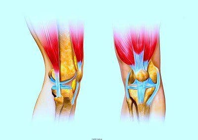 dolor en el muslo, rodilla