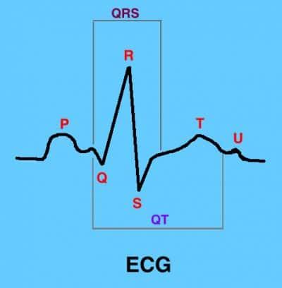electrocardiograma, onda, QRS, ST
