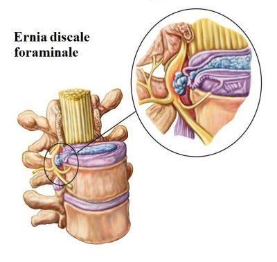 ernia-discale-foraminale-400x378