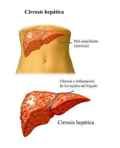 Higado-cirrosis-hepatitis-c