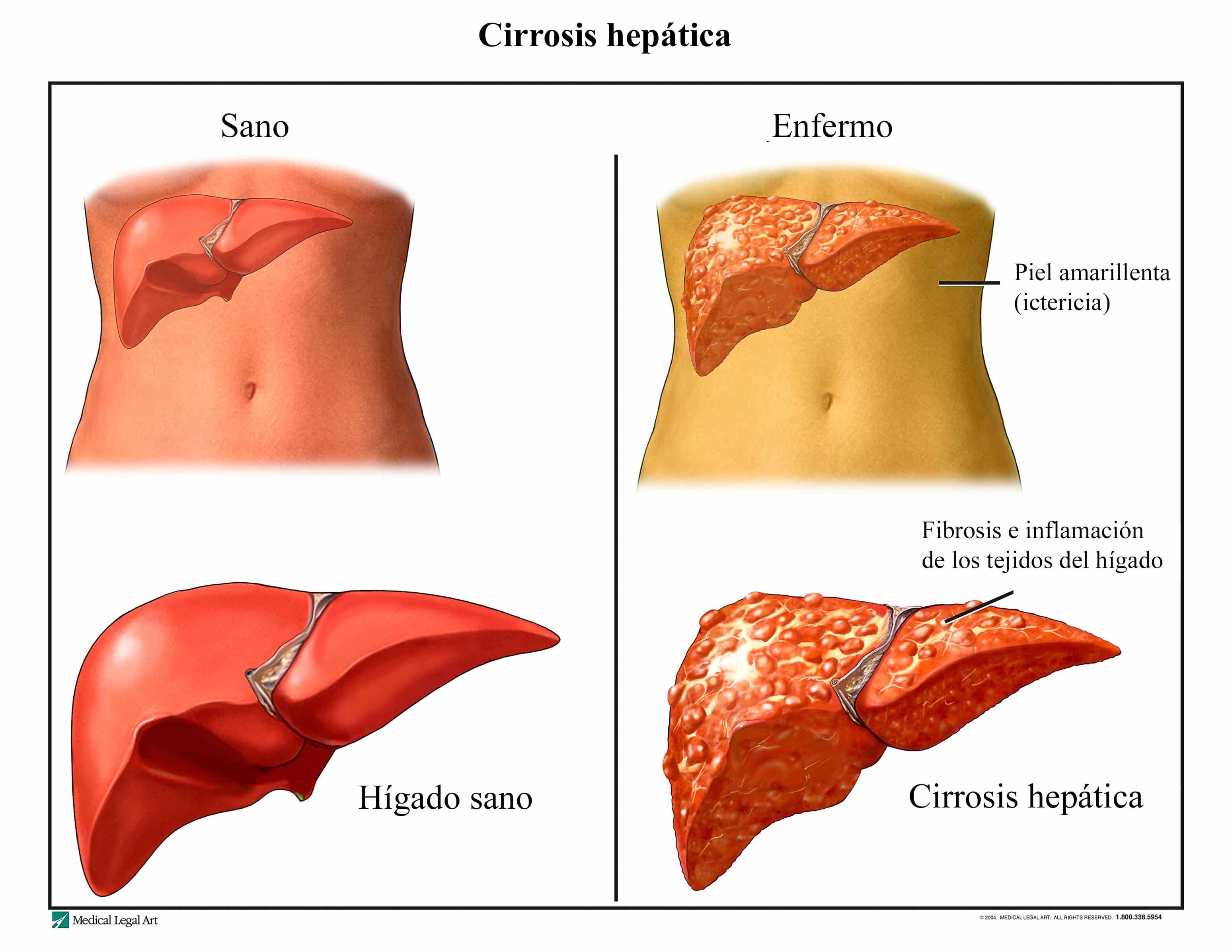 Cirrosis hepática, síntomas, causas, crónica, fase terminal y ...