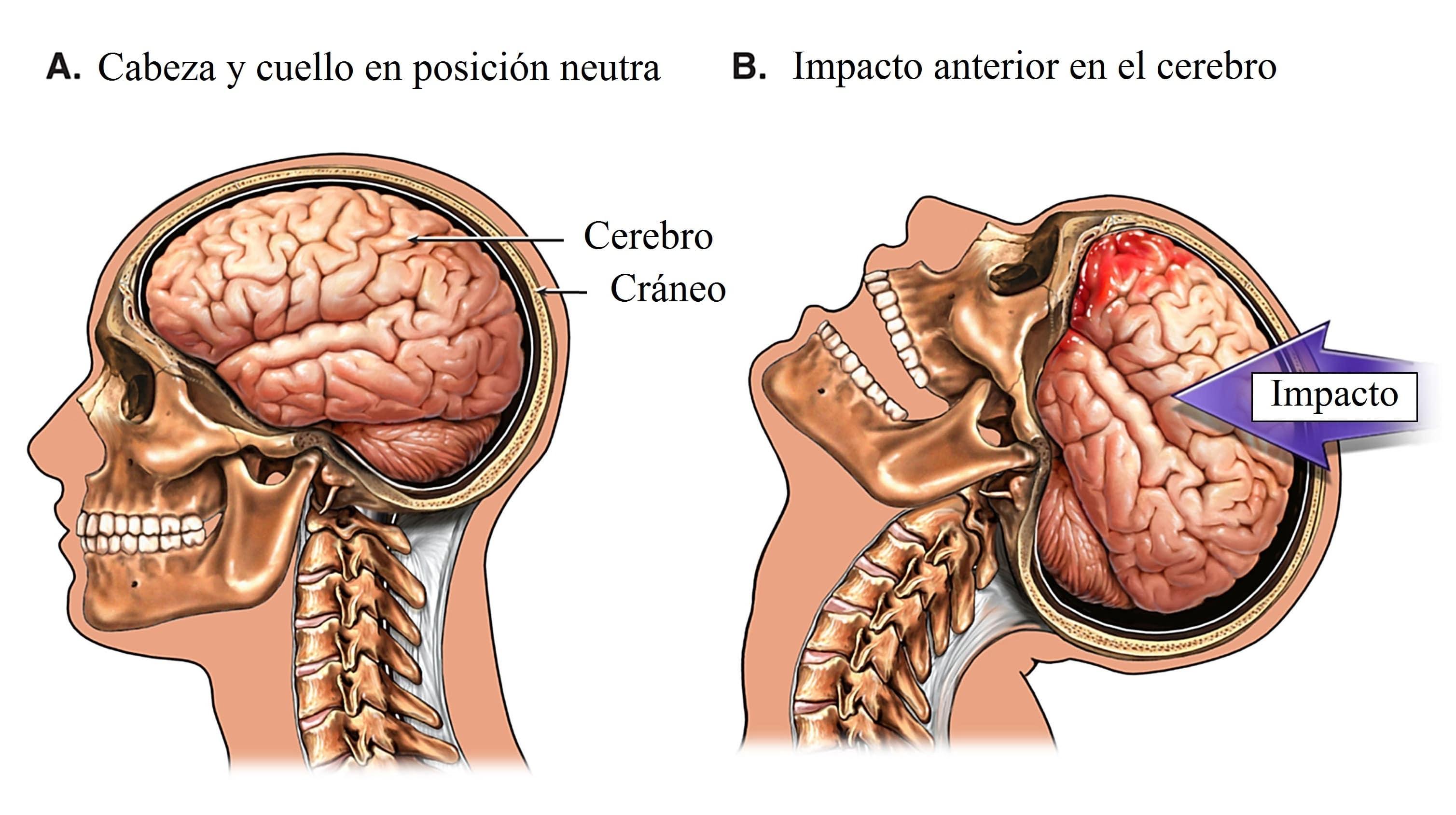Impacto-cerebro